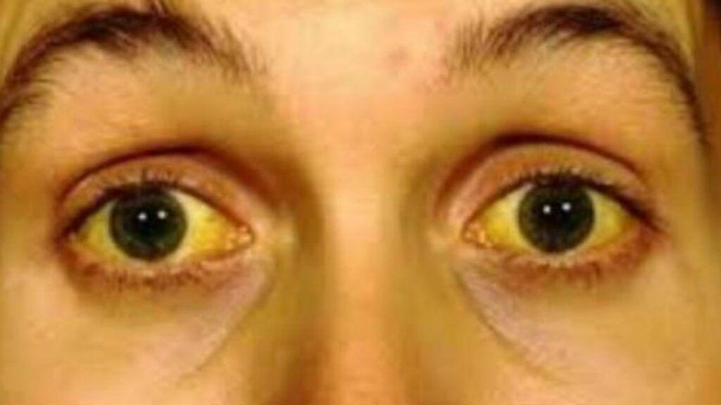 Vàng da là dấu hiệu ung thư gan giai đoạn đầu điển hình
