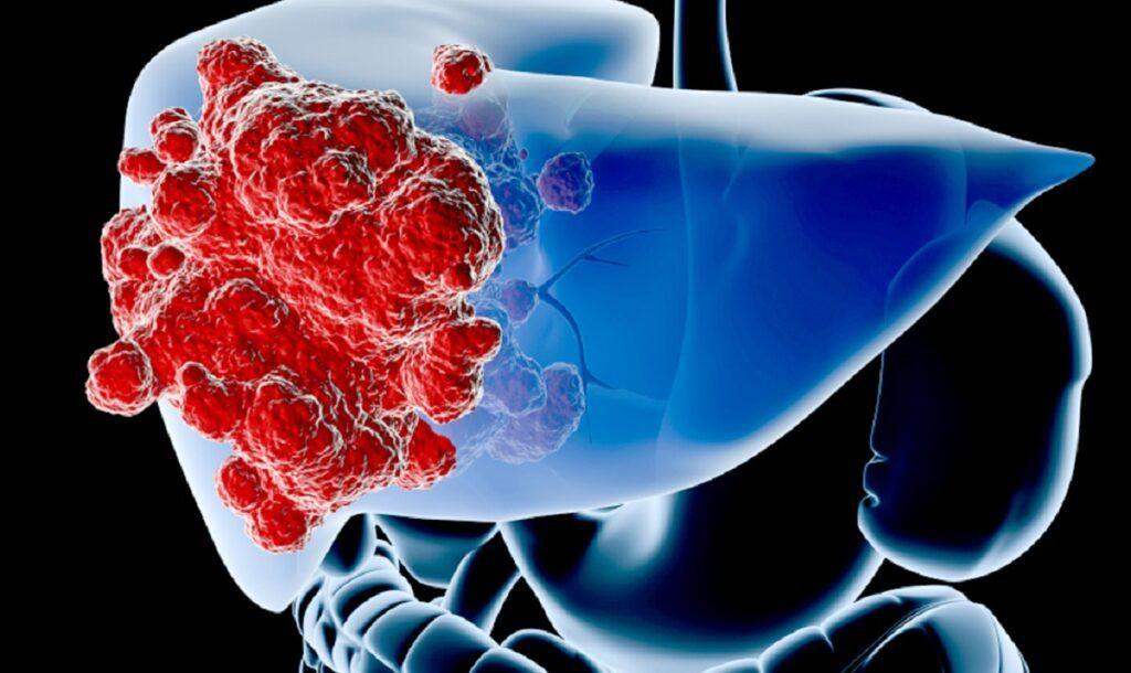 Ung thư gan nguyên phát là bệnh ung thư bắt nguồn từ gan