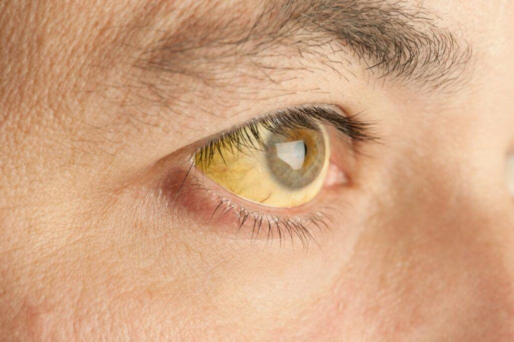 Vàng da, vàng mắt là dấu hiệu điển hình của ung thư gan