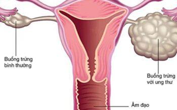 Các phương pháp điều trị ung thư buồng trứng giai đoạn đầu