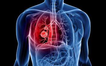 Những dấu hiệu của bệnh ung thư phế quản giai đoạn cuối