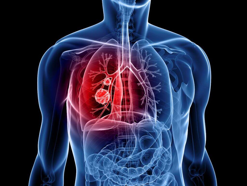Tràn dịch màng phổi, khó thở, đau tức ngực là những dấu hiệu của bệnh ung thư phế quản
