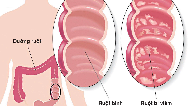 Triệu chứng ung thư đường ruột thường xuất hiện ở giai đoạn sớm hơn so với các nhóm ung thư khác