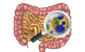 Triệu chứng ung thư đường ruột và cách điều trị hiệu quả