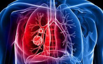 Triệu chứng ung thư phổi giai đoạn đầu cần lưu ý
