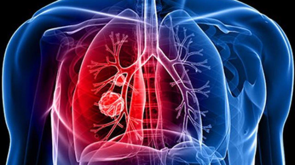 Ung thư phổi là bệnh lý nguy hiểm có tỷ lệ tử vong cao