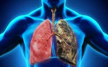 Triệu chứng ung thư phổi không thể bỏ qua