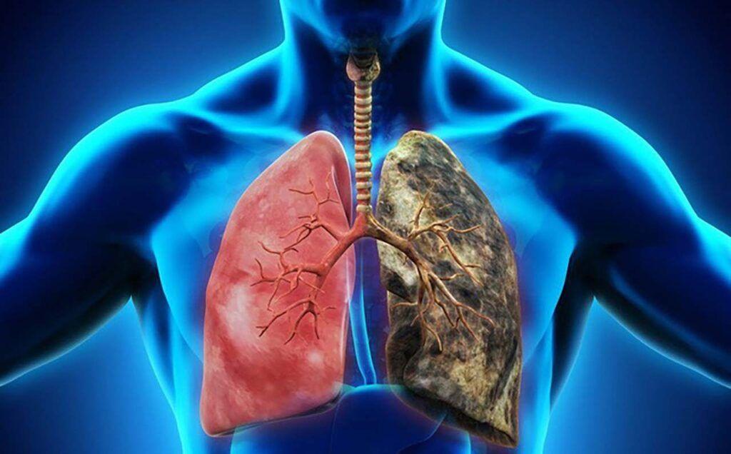 Ung thư phổi là một loại ung thư bắt đầu trong phổi – cơ quan xốp trong lồng ngực