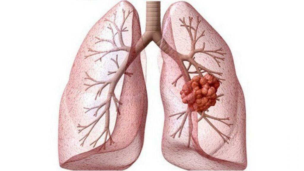 Phần lớn bệnh nhân ung thư phổi phát hiện trễ nên kết quả điều trị thấp, khi di căn đến gan, xương, não... chỉ 1% sống 5 năm