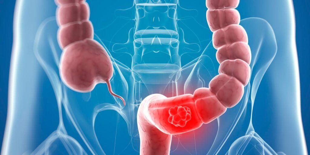 Ung thư trực tràng còn được gọi là ung thư ruột thẳng