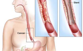 Triệu chứng ung thư thực quản ai cũng cần biết