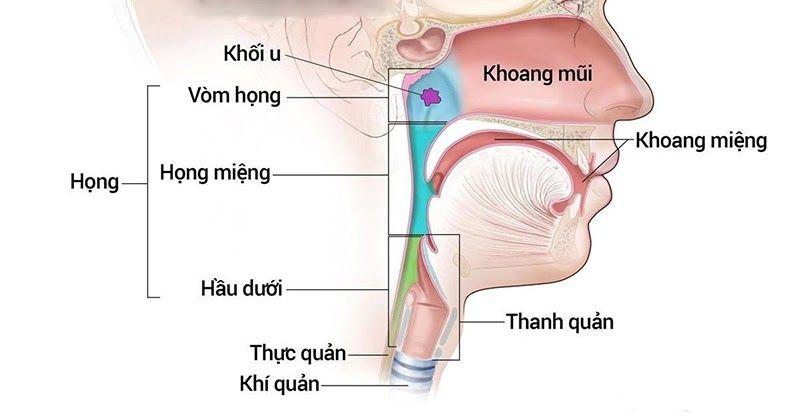 Ung thư vòm họng hay còn được gọi là ung thư mũi hầu xảy ra khi các tế bào ung thư phát triển từ các mô trong mũi hầu