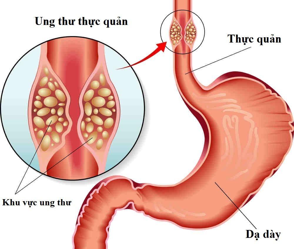 Thực quản là bộ phận mang thực phẩm sau khi nuốt vào dạ dày, tại đó sẽ được tiêu hóa