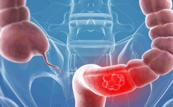 Tìm hiểu phương pháp điều trị ung thư đại tràng theo từng giai đoạn