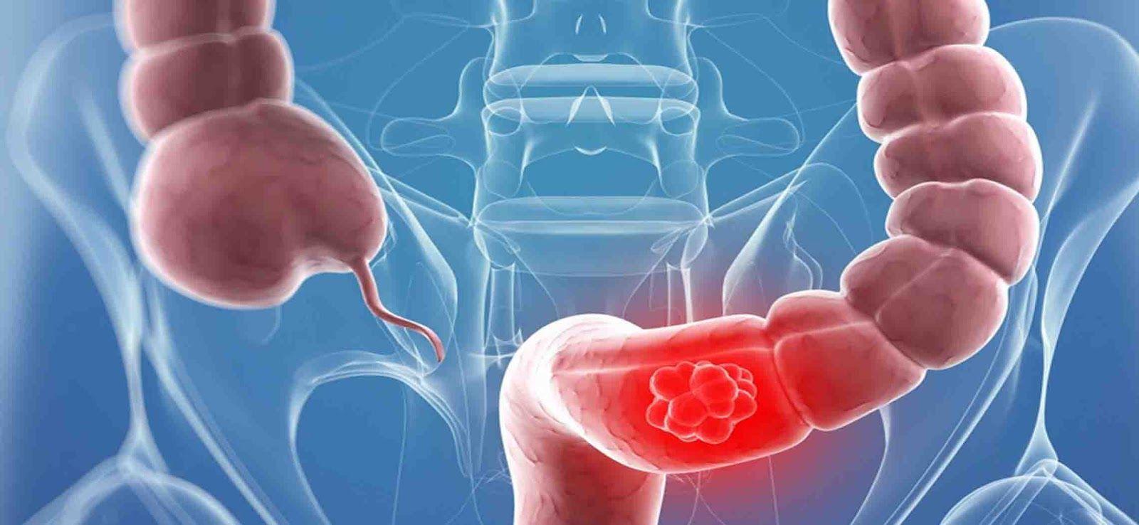 Ung thư đại tràng là bệnh lý phổ biến ở Việt Nam