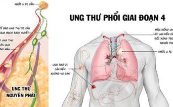 Triệu chứng ung thư phổi di căn gan