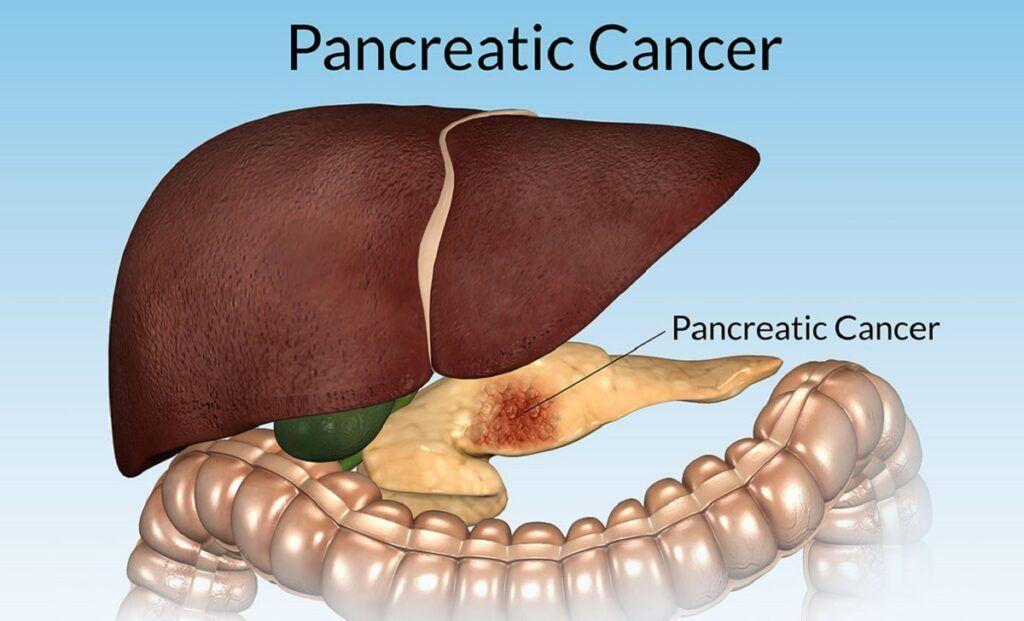 Ung thư tụy giai đoạn cuối di căn đến các bộ phận khác