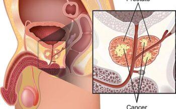 Thông tin về bệnh ung thư tuyến tiền liệt nam giới cần biết