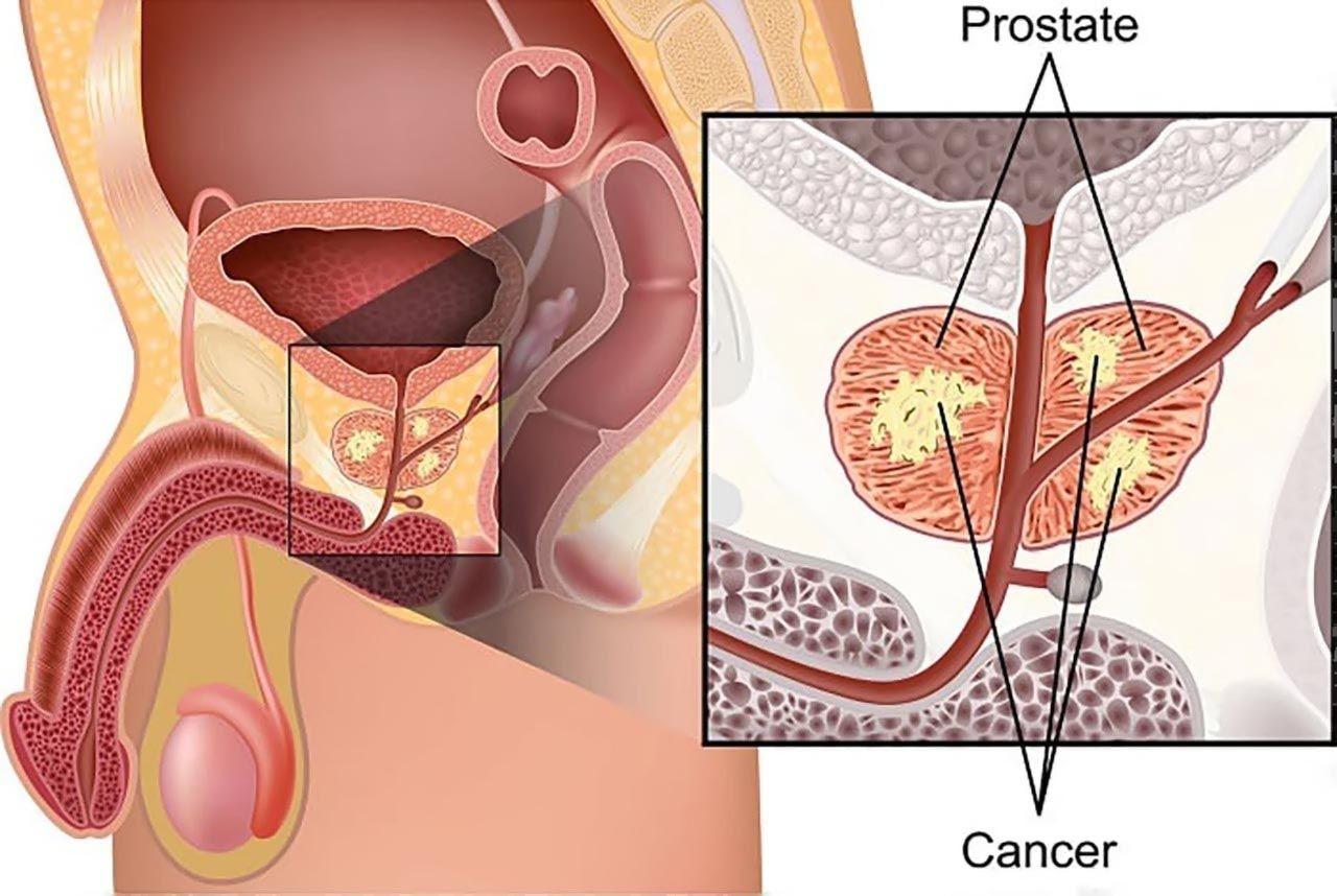 Bệnh ung thư tiền liệt tuyến ở nam giới
