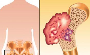 Ung thư xương có chữa được không?