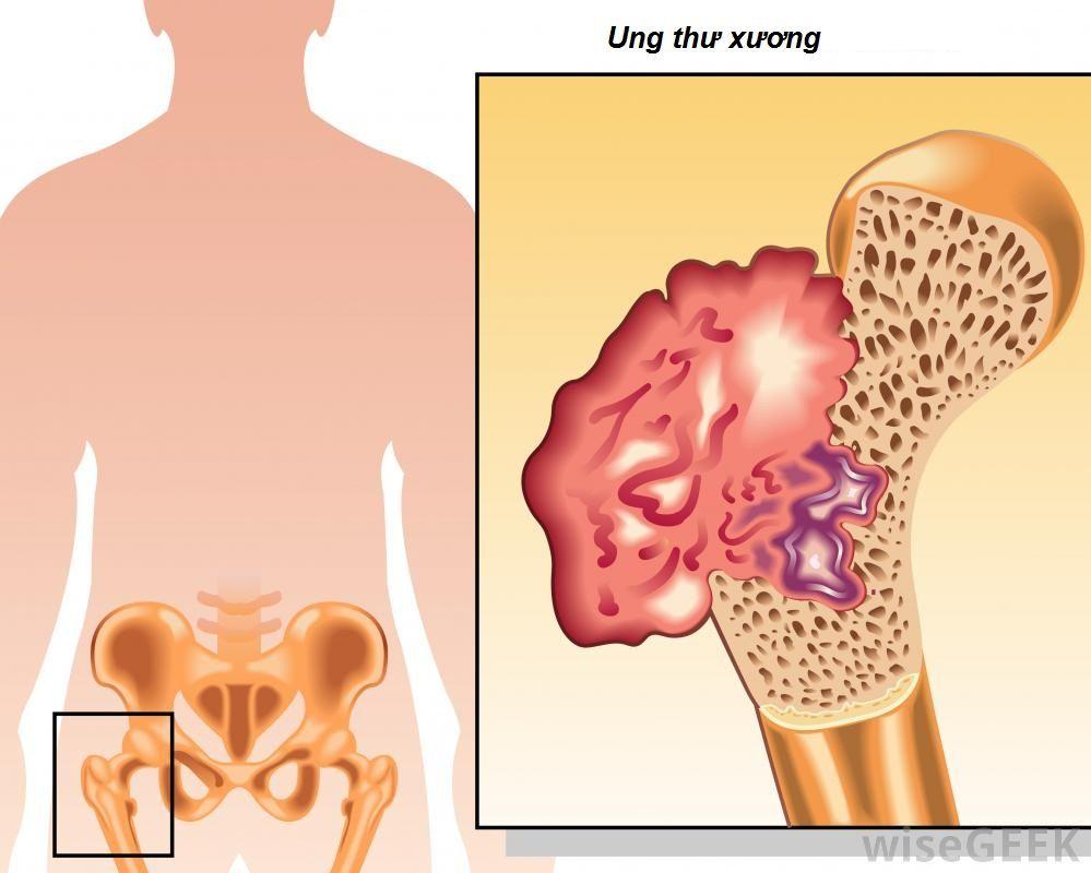 Ung thư xương là bệnh lý ác tính bắt nguồn ở xương