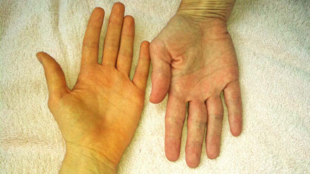 Vàng da là một trong những dấu hiệu ung thư gan điển hình