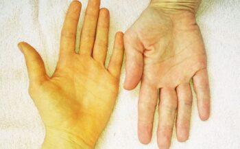 Những dấu hiệu ung thư gan mà bạn có thể dễ dàng nhận thấy