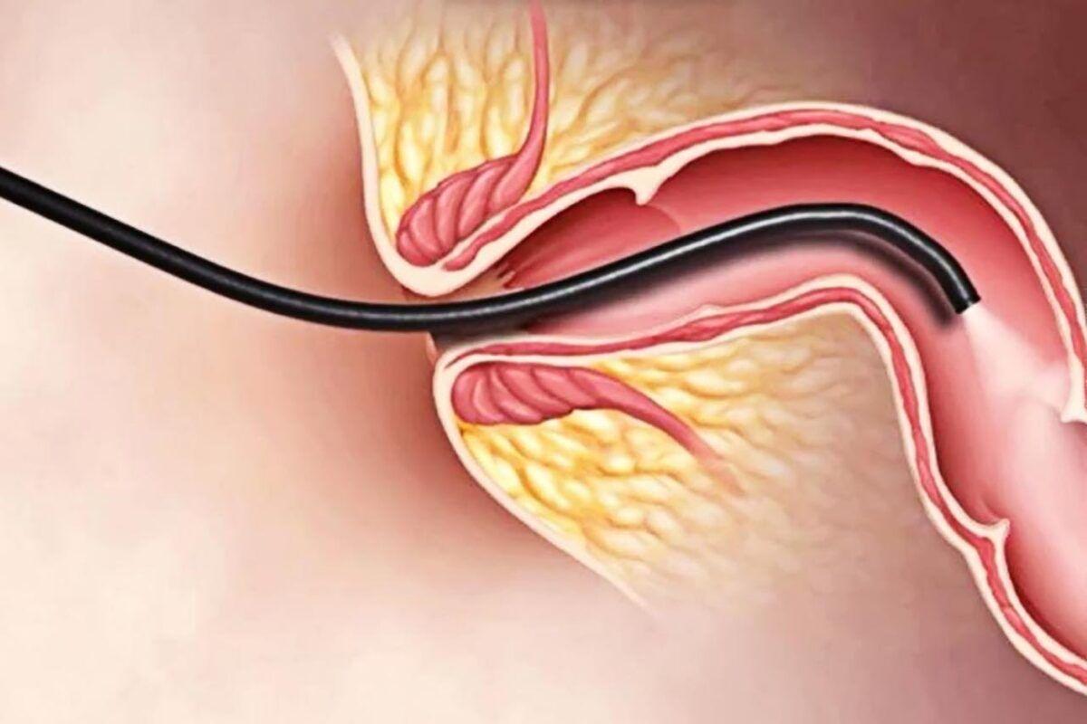 Khám nội soi giúp phát hiện ung thư đại tràng