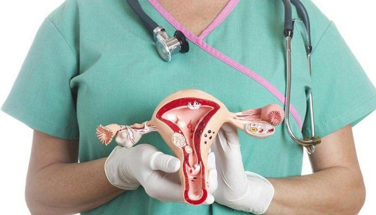 Cách điều trị ung thư buồng trứng phụ thuộc vào thời điểm phát hiện bệnh