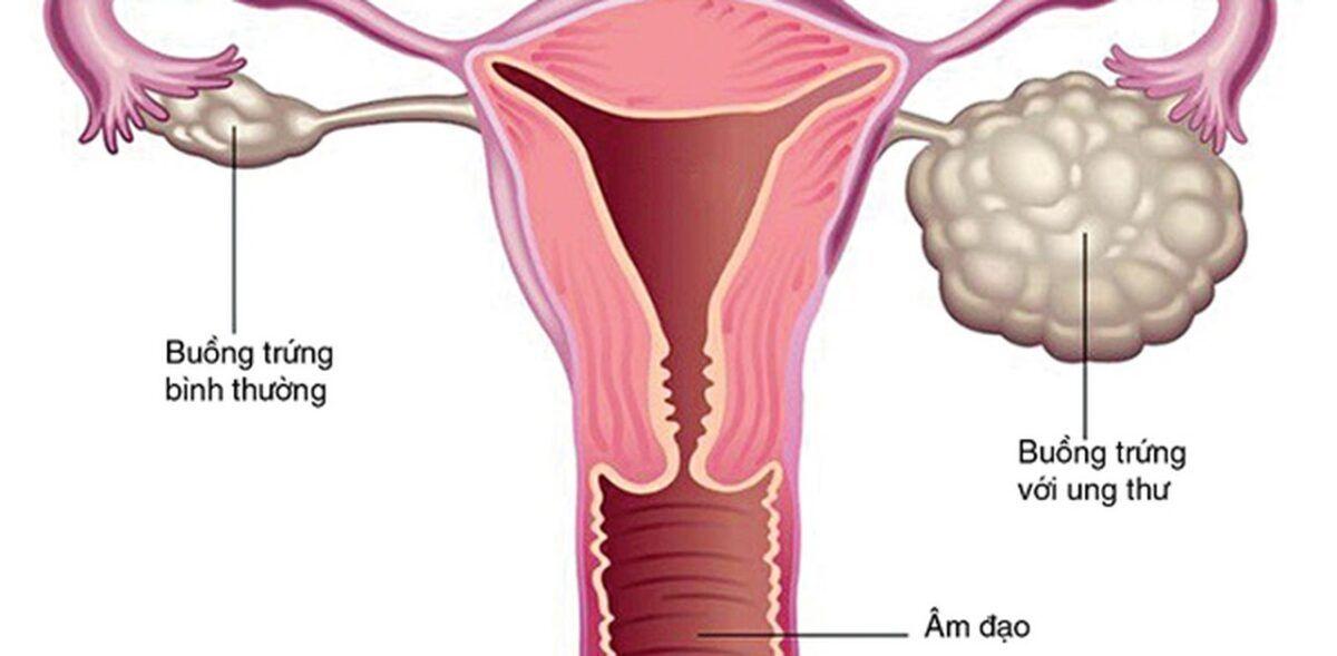 Thường xuyên đau bụng và đầy hơi là dấu hiệu của ung thư buồng trứng