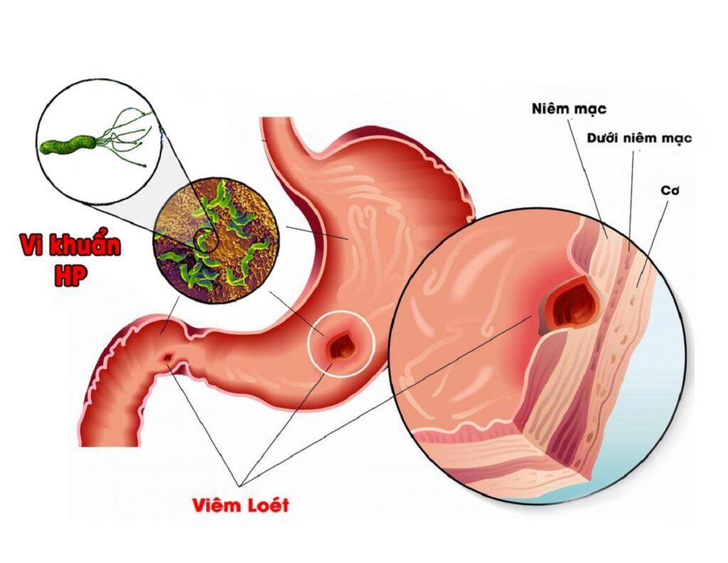 Vi khuẩn HP là một trong những yếu tố nguy cơ làm tăng khả năng mắc bệnh