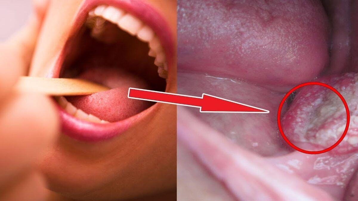 Ung thư vòm họng là bệnh lý nguy hiểm ngày càng gia tăng và trẻ hóa