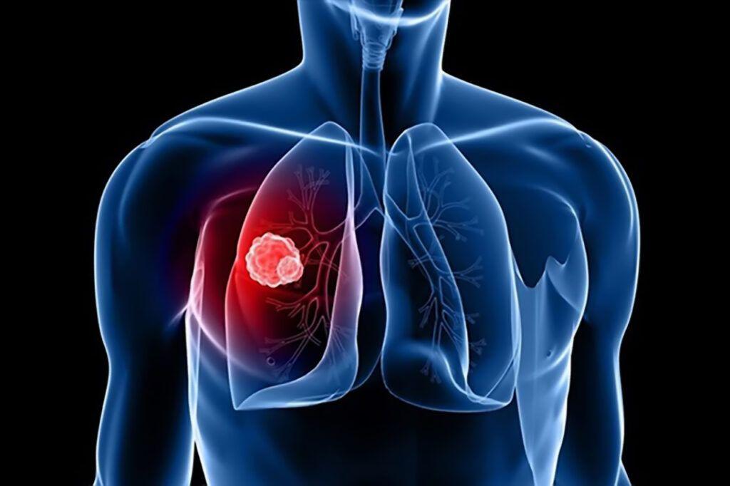 Như vậy ung thư phổi giai đoạn cuối là giai đoạn các khối u đã lan toàn bộ 2 lá phổi và di căn sang các khu vực khác trong cơ thể