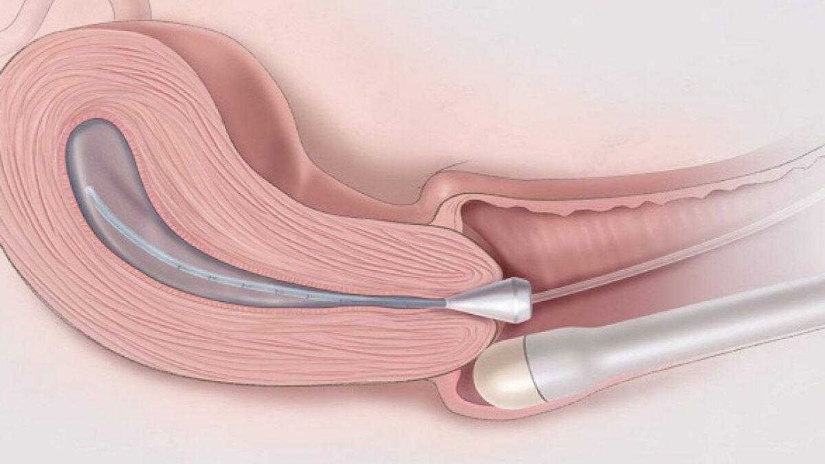 Siêu âm giúp bác sĩ kiểm tra kích thước, hình dạng và cấu hình của buồng trứng
