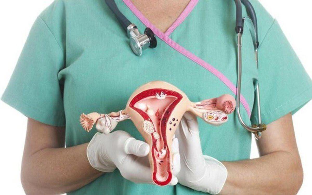 Dấu hiệu ung thư buồng trứng giai đoạn sớm thường khó phát hiện