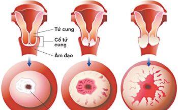 Dấu hiệu ung thư cổ tử cung giai đoạn 3