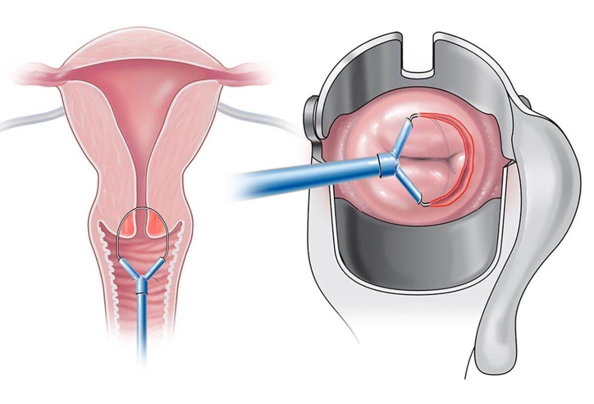 Khoét chóp là phương pháp thường được sử dụng để điều trị và sinh thiết cổ tử cung