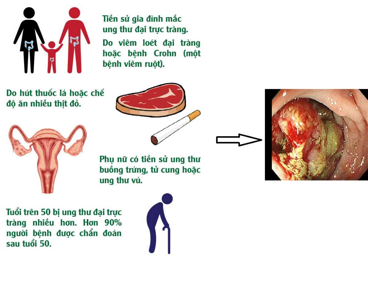 Hình ảnh 1. Một số nguyên nhân gây ung thư đại trực tràng