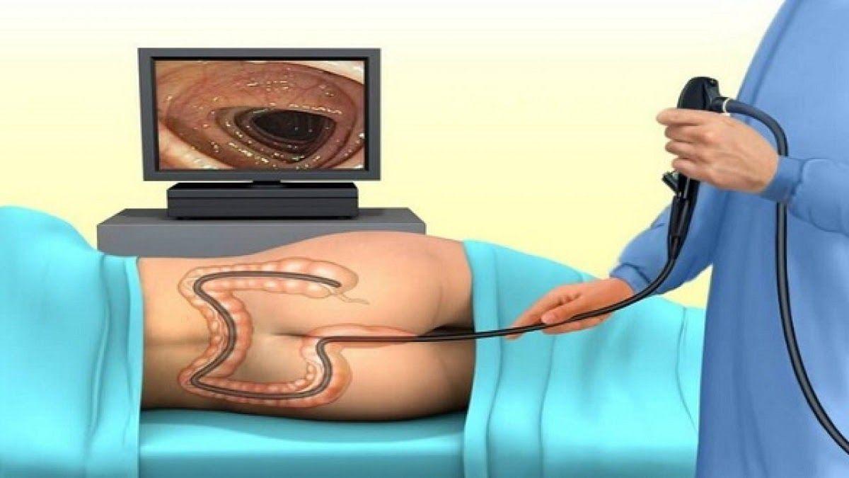 Nội soi giúp chẩn đoán ung thư đại trực tràng