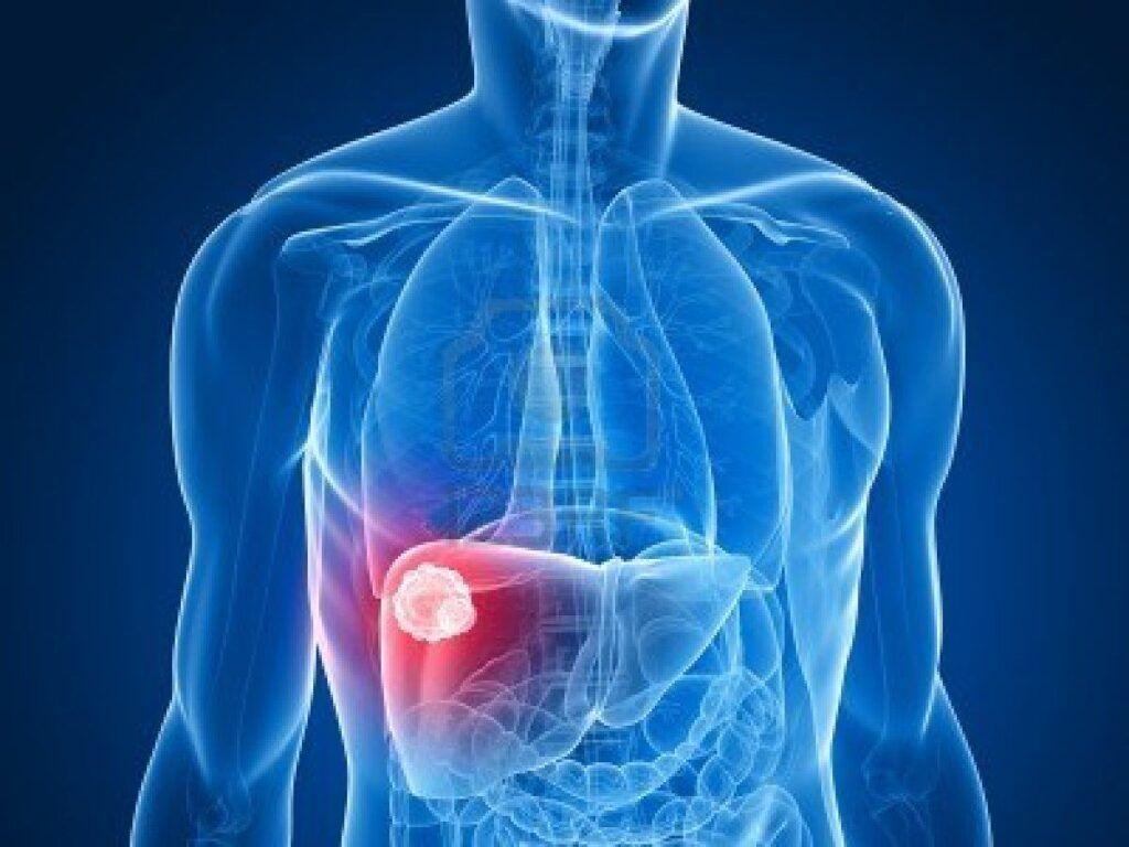 Bụng bị chướng và to dần là dấu hiệu thường gặp của ung thư gan