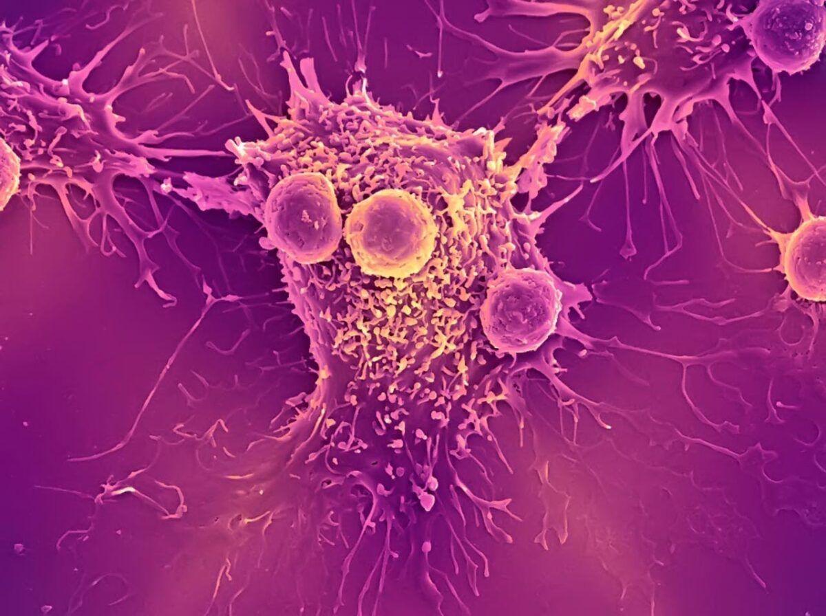 Liệu pháp nhắm mục tiêu là một trong những phương pháp tiên tiến điều trị ung thư gan