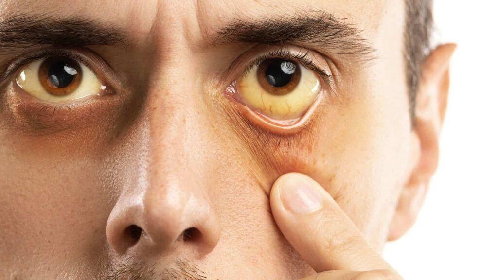 Vàng mắt, vàng da là một trong những dấu hiệu ung thư gan