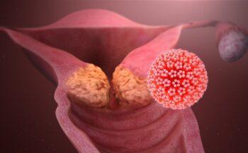 Tìm hiểu những triệu chứng bệnh ung thư cổ tử cung