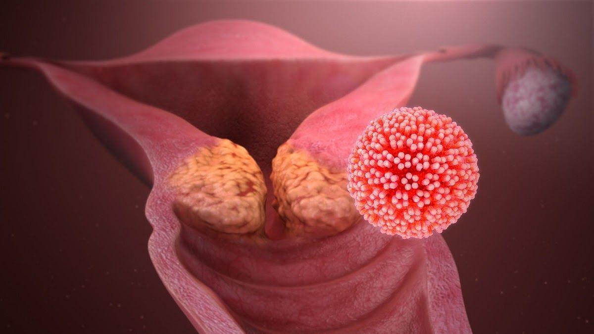 Virus HPV (Human papillomavirus) là nguyên nhân hàng đầu gây bệnh ung thư cổ tử cung
