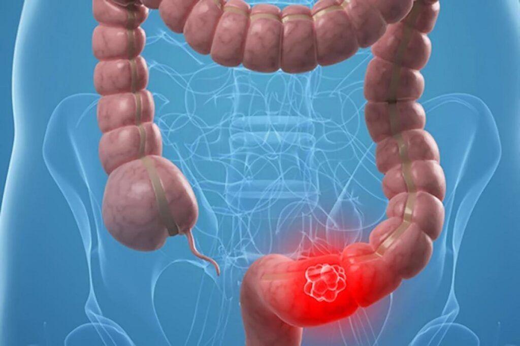 Các giai đoạn phát triển của ung thư đại tràng