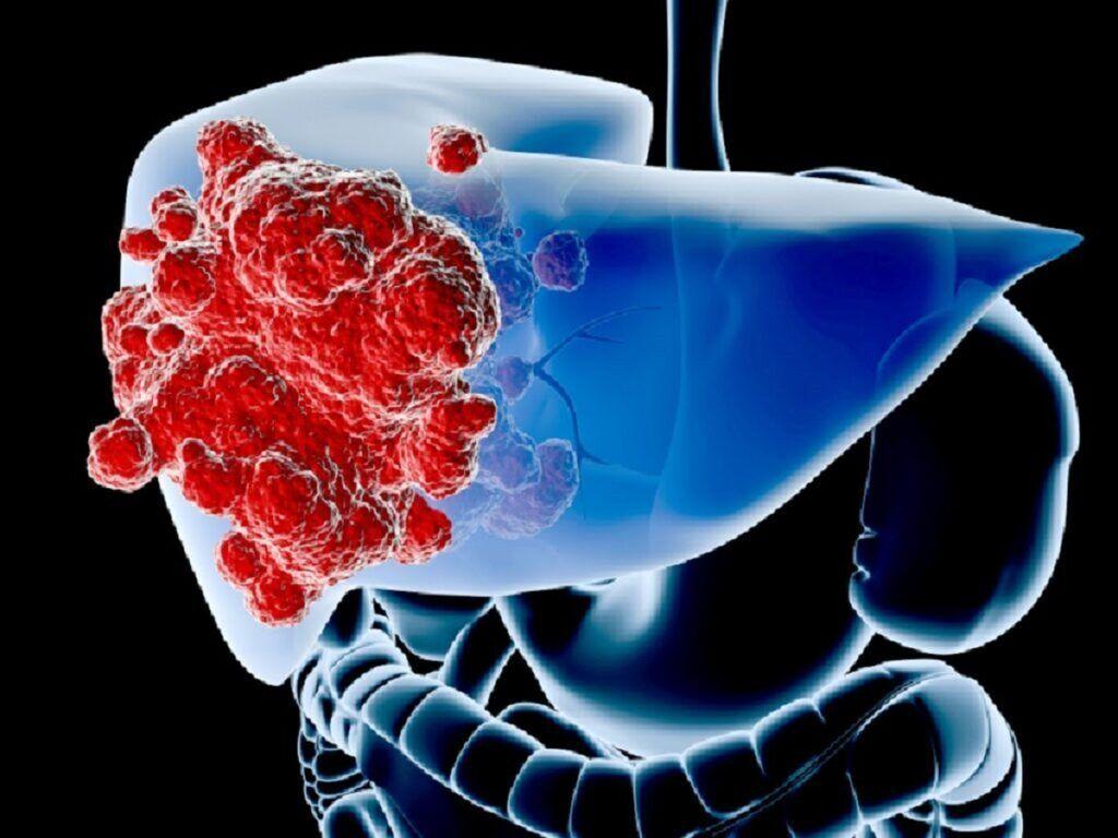 Hình ảnh mô tả các khối u ác tính ở gan