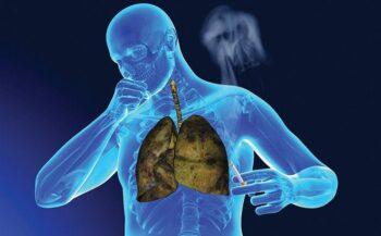 Có nên chữa ung thư phổi giai đoạn cuối bằng thuốc nam