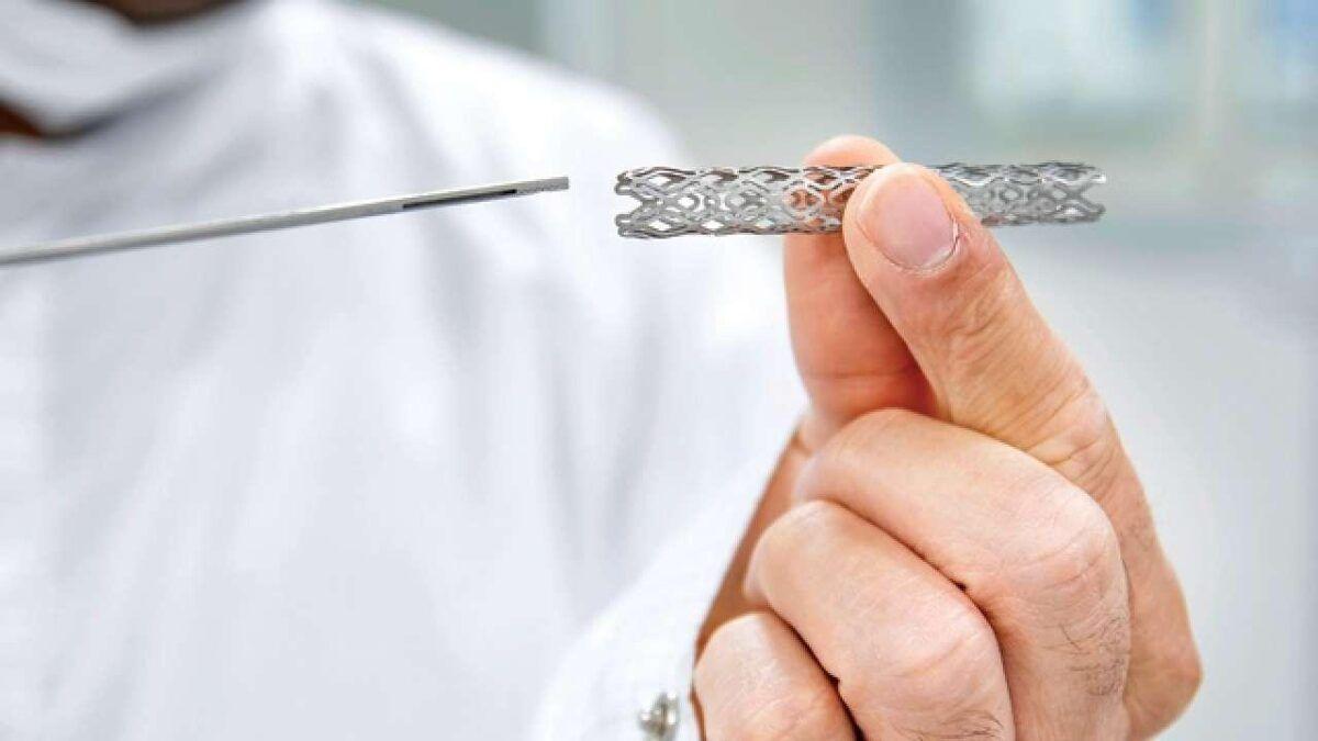 Ống stent được dùng cho một trong các phương pháp phẫu thuật ung thư đại tràng