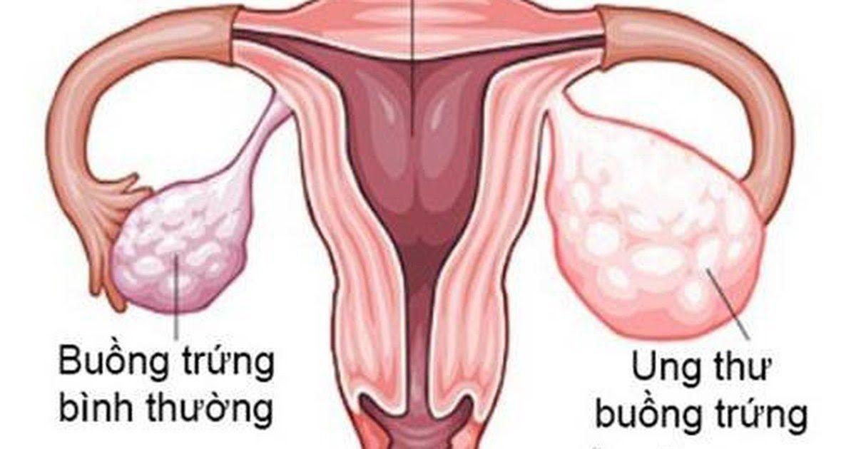 Hình ảnh mô phỏng ung thư buồng trứng