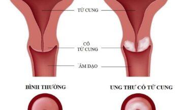 Các dấu hiệu ung thư cổ tử cung giai đoạn đầu, phương pháp điều trị
